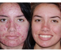 12 LIGHTWAVE (Red/Blue) Sessions over 4 weeks - Active Acne LIGHTWAVE (Red/IR) Sessions over 4 weeks - Scarring/Discoloration 3 Pro Peels