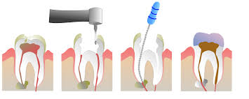 Pyrmont Dentist | Emergency Dentist | Root Canal Treatment