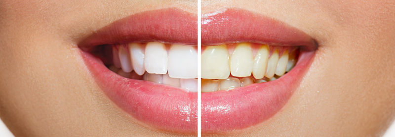 Teeth Whitening | STAR dentistry Pyrmont.jpg
