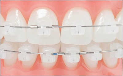 White Braces STAR dentistry.jpg