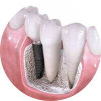 STAR dentistry Dental Implants