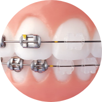 STAR dentistry Braces