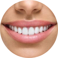 STAR dentistry Veneers