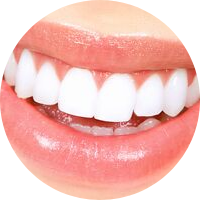 STAR dentistry Teeth Whitening