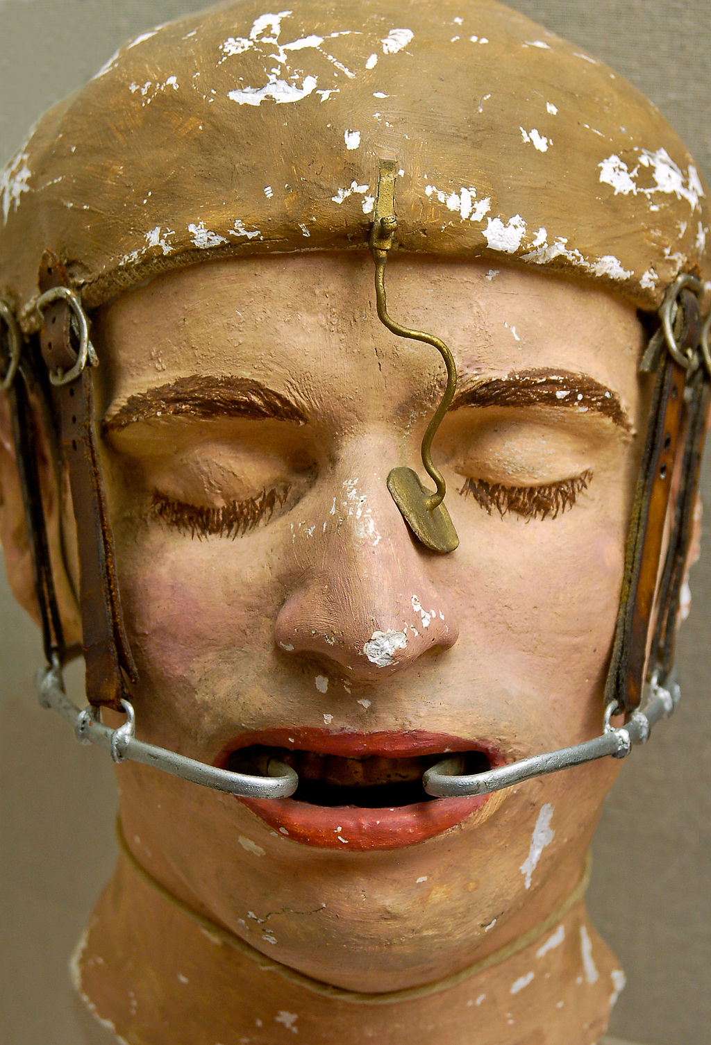 Old-style plastic surgery - A model of facial reconstruction based on what was used in World War I. But what about today in Latin America? Listen to today's Spanish audio podcast to find out more!
