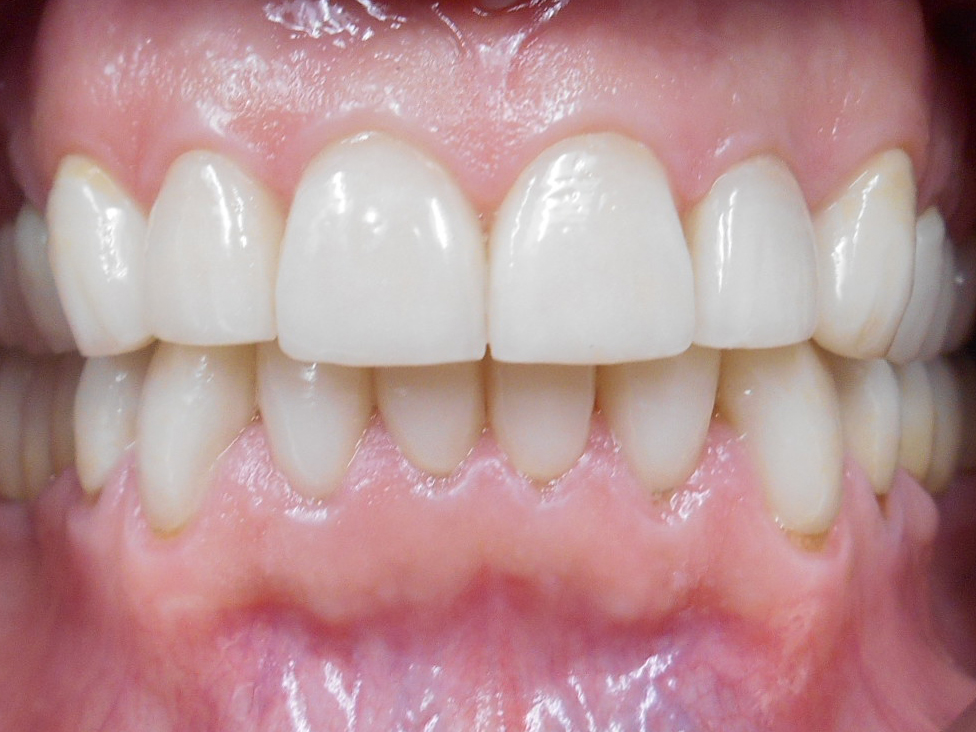 After: Restored after occlusal therapy, included small opening of vertical dimension.