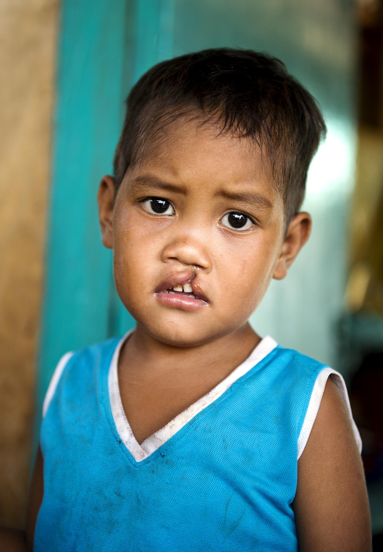 Operation Smile PHL_2014_Bantayan_052_Escala_Home_002.tif_NetPublish_Converted.jpg