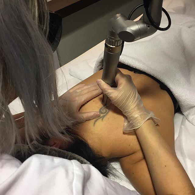 Die neue Technologie für nicht mehr gewünschte Tattoos ist da!  Unser Tattoo Laser gehört mit Sicherheit der allerneusten Generation von Tattoo-Entfernungs-Systemen an. Als einer der wenigen Instituten in der Schweiz können wir die Tattoo Entfernung anbieten. Der neuste Laser auf dem Markt für Tattoo Entfernung ermöglicht eine schmerzarme, sichere Tattoo Entfernung ohne Narbenbildung auf der Haut. . #tattooentfernung #lasertattooremoval #vanitytheartofbeauty #vanityzurich