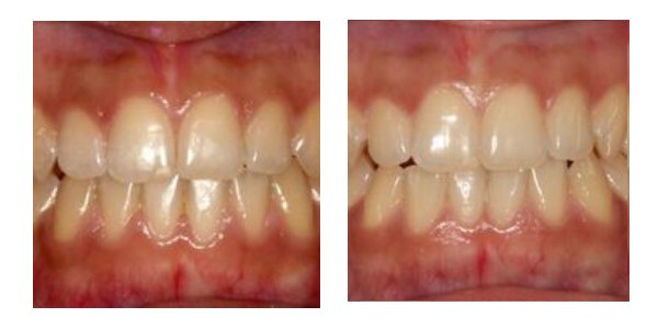 Case 4    This lady in her late 20s had worn braces as a teenager but was not given a retainer to keep them straight. Consequently her teeth had moved again. She wore a QST brace for five months to realign her teeth. She now has fixed and removable retainers to prevent any further movement.