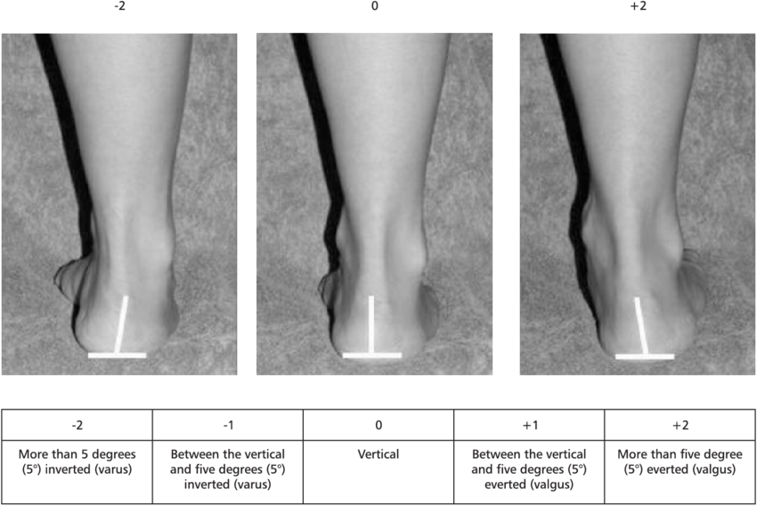 The-evaluation-of-the-inversion-eversion-of-the-calcaneus.png