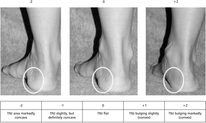the-evaluation-of-bulging-in-the-region-of-the-talonavicular-joint.png