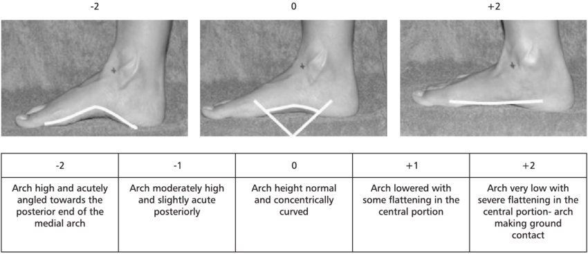 the-evaluation-of-the-medial-longitudinal-arch.png