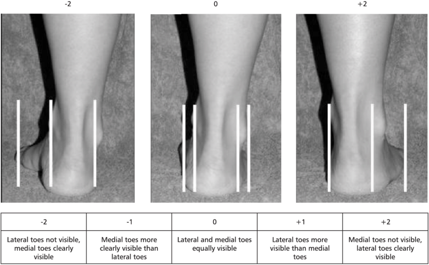 The-evaluation-of-the-abduction-adduction-of-the-forefoot-on-the-rear-foot.png