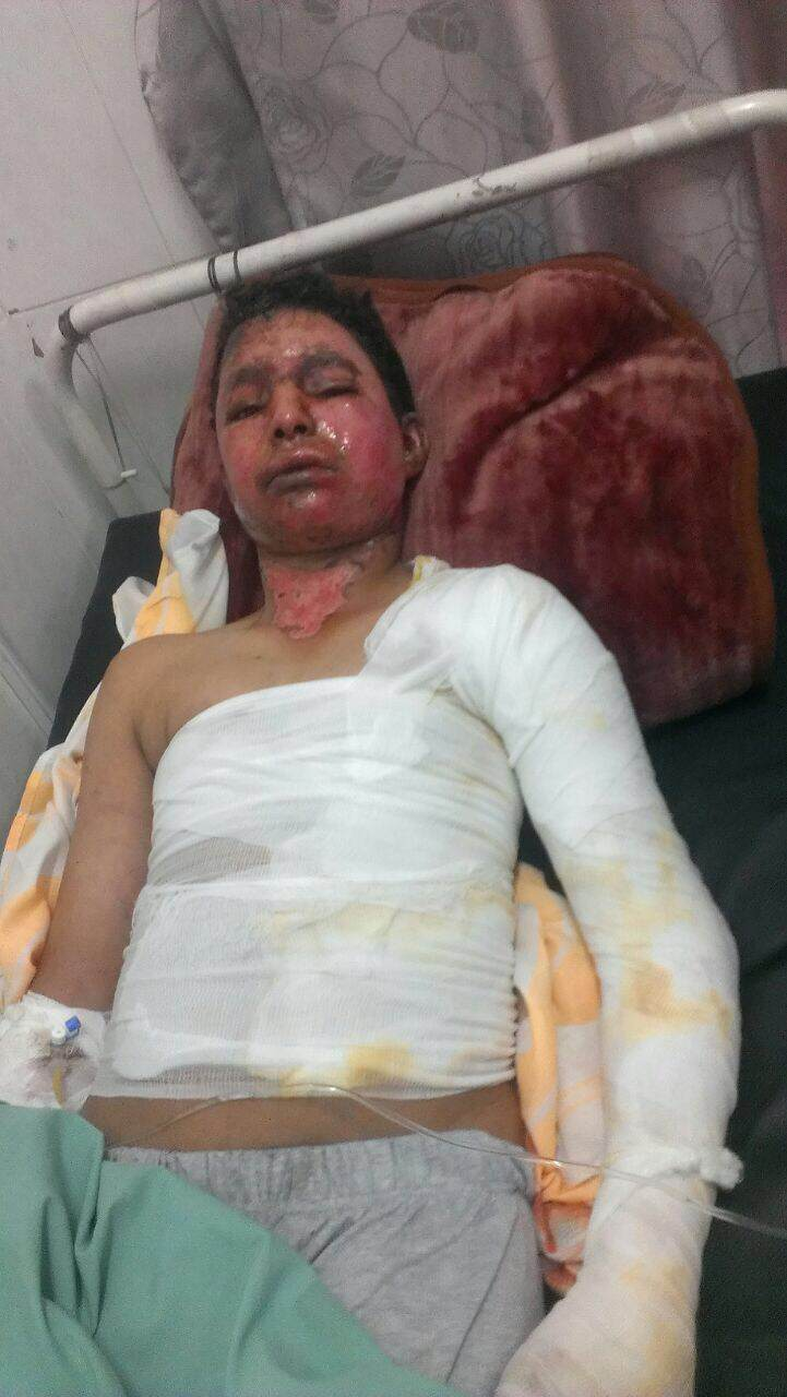 Abdullah Saleh al-Jehafi, 16, suffered horrific burns