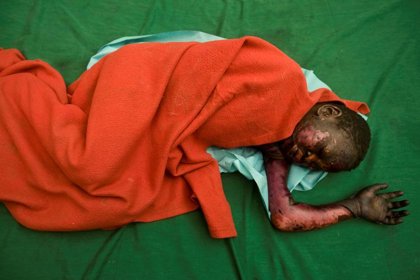 ستة أطفال في مستشفى ماذر أوف ميرسي أُصيب أكثر من 50   بالمائة من أجسادهم بحروق جراء انفجار قذيفة مدفعية في قرية أم سرديبا.  (جيوفاني ديفيدينتي)