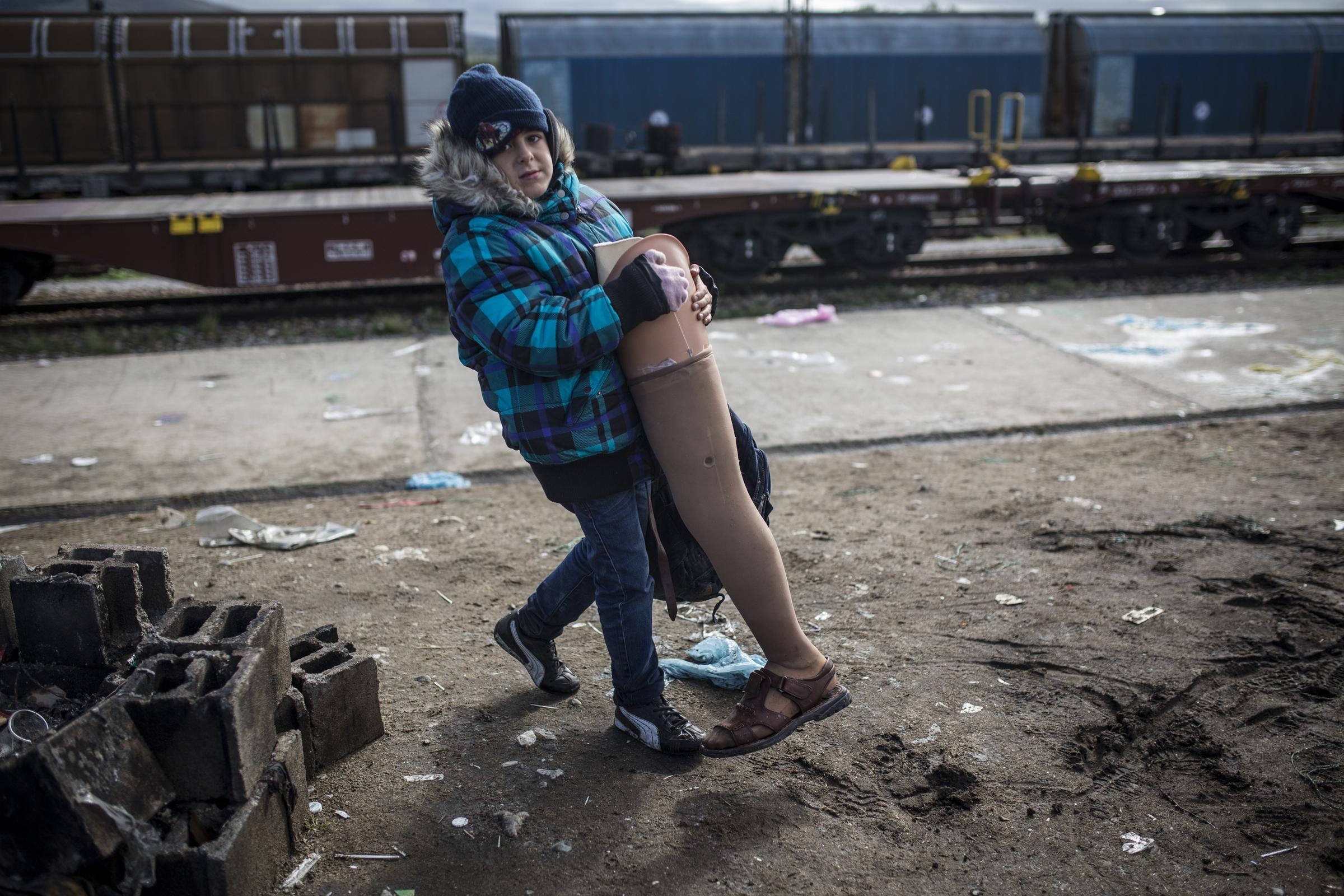 Le petit-fils de Bashar, également prénommé Bashar, est âgé de sept ans. Il porte la jambe prothétique de son grand-père.