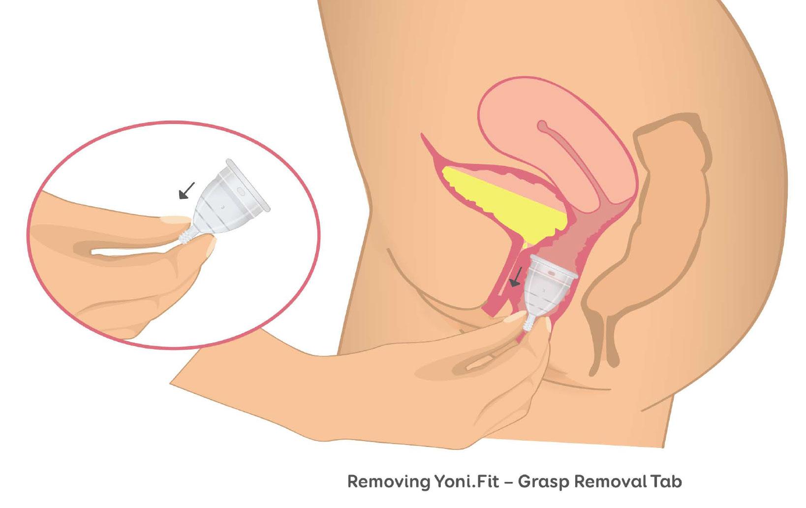 Medical-Illustration-20.jpg