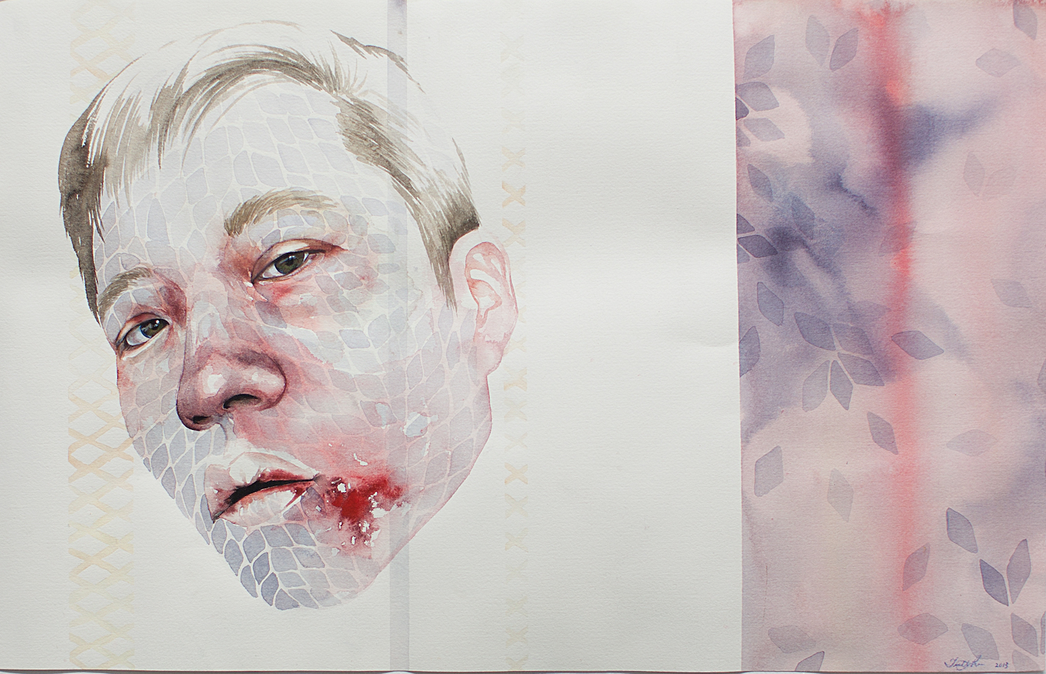 Self Portrait with busted lip (Panic) (2013); courtesy of the artist and  Sabrina Amrani Gallery