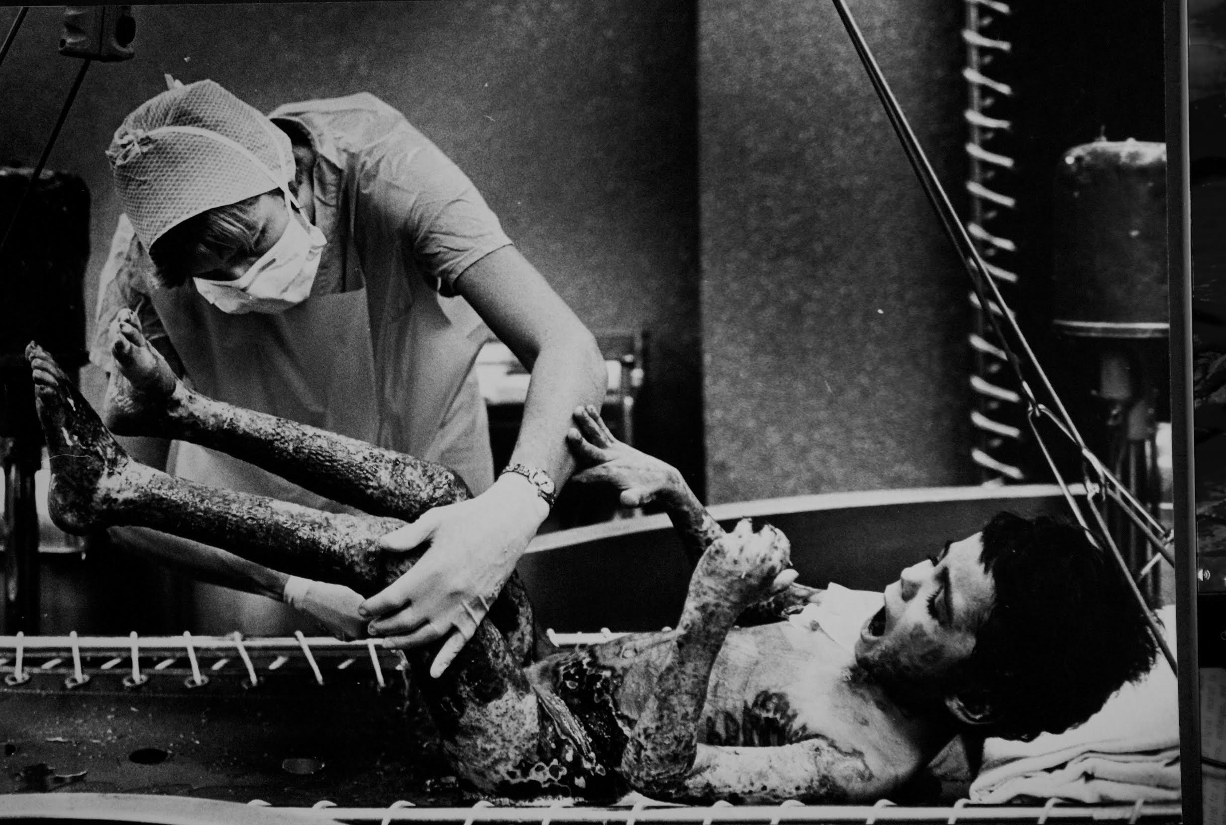 Child severely burned during Hoboken arson fires in the early 1980s. Here he is going through a daily cleaning of dead tissue at a burn center. Photograph by Bill Bayer.