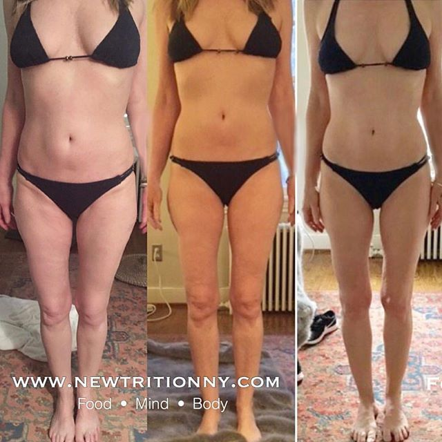 """TRANSFORMATION TUESDAY👊 Whether you have 10 lbs to lose or 110 lbs, my programs work from the inside out. . The crux of my philosophy is that before you can change the body, you have to change the mind. Most clients who come to me for weight loss soon realize that the process is far more than just about a number on the scale. . This particular client, who is at the end of her 12 session NEWBODY program writes: . """"I feel that I have now developed some very powerful and positive habits that are incredibly life changing and so so good for me. And I definitely did not sign up for that. . I signed up to lose 15 lbs and have a rail thin body. But what happened is I fell in love with the body I got after about 6 weeks of working with Victoria and it only was about a 10 lb difference. It became not about how much I weighed but how good I felt and how good I looked in the mirror. Huge change for me. . I stopped idealizing anorexia as a beautiful and desirable body type. That's about a 30 to 40 year obsession that has been put to rest. If this was all I got out of the program, it would have been enough. This obsession ruled my life for a very long time."""" . Tap on link in bio and this image to learn more about working with me. . 🤗Sharing is caring!  Have any friends who need to hear this? Tag them on this post so we can all #knowbetterdobetter . Find out more about me or schedule a consultation: ☎️917-773-8095 📧info@newtritionny.com 💻www.newtritionny.com . . . . #morethanweightloss #loseweightwhilegainingsomuchmore #itsnotadietitsalifestyle #diet #exercise #loseweight #transformationtuesday #transformation #fitgirls #goals #commitment #newyouprogram #newyou #newbodyprogram #newyou #newtritionnewyou #newbody #progress #bikinibody #consistency #inspiration #weightloss #fatloss #fatlossjourney #transformationtuesday #transform #weightlossmotivation #anorexiarecovery #loseweightfromtheinsideout"""