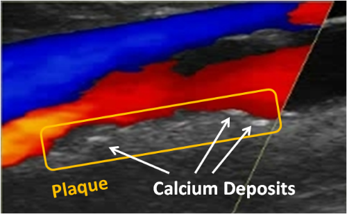Plaque vs Calcium.labeled.png