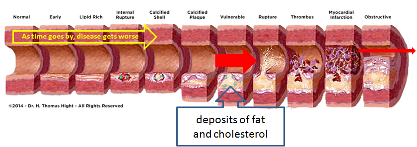 Over Time Artery Disease get worse.png