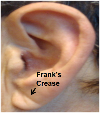 Franks Ear Crease Labeled. 1.png