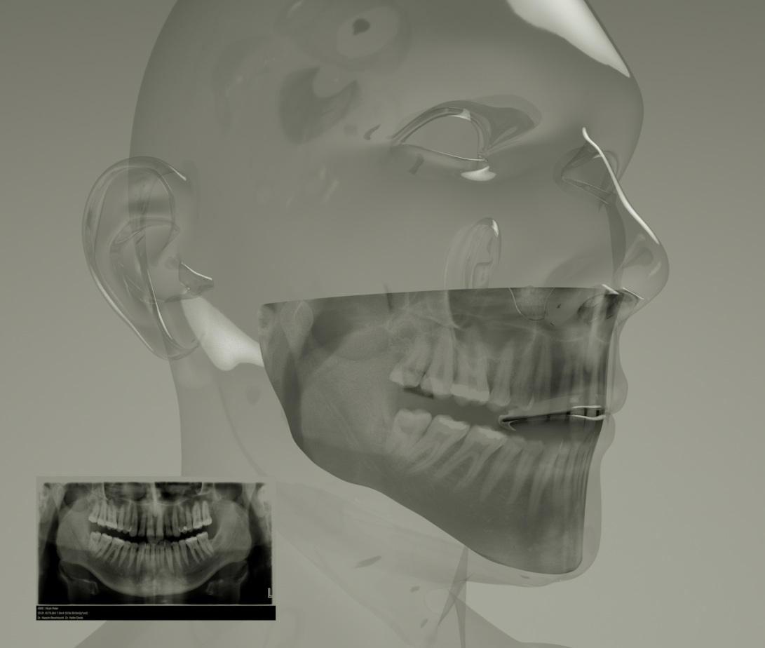 cybermonk-de X-RAY a.jpg