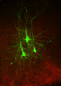 Cortical neurons -  H.Adesknik