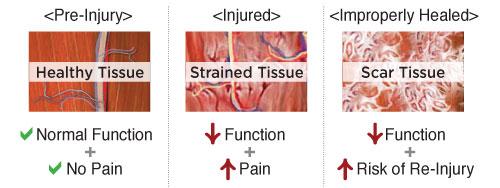 muscle strain treatment nashville