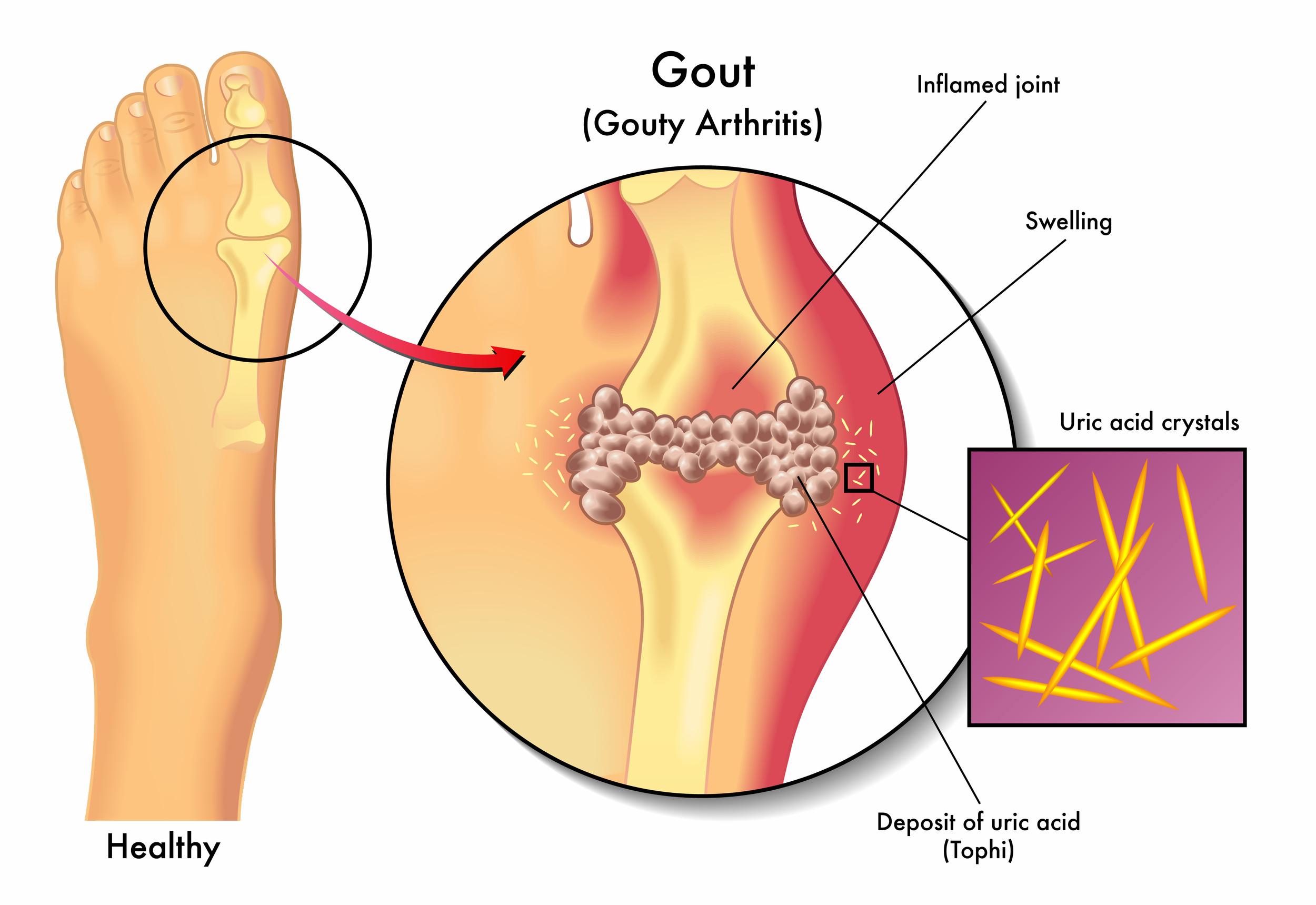 Gout pain treatment Nashville