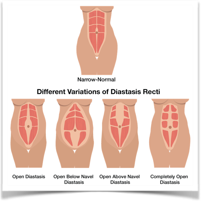 The light cream down the centre of the muscles, represents the linea alba. Notice the different ways that connective tissue can separate.