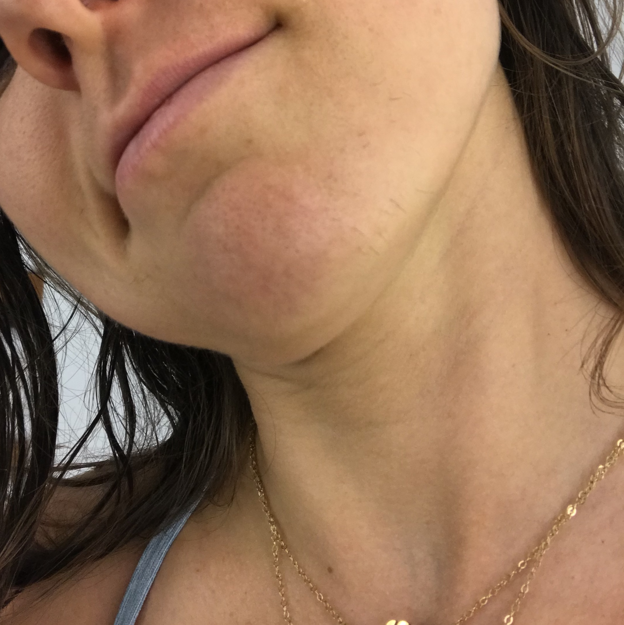 BEFORE!  A photo of my dark and thick chin hairs moments before going in for my last electrolysis appointment in March 2018. My chin used to be covered with these. It looks so much better now.