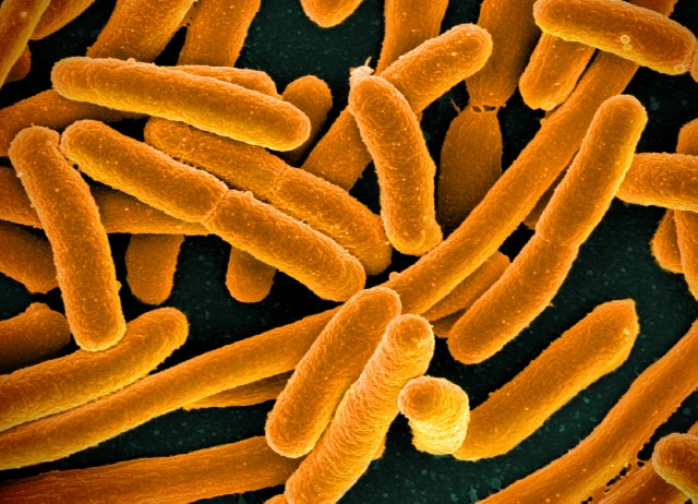 E. coli  bacteria - the strain of bacteria genetically engineered to produce terpene.
