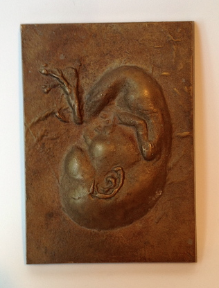 """fetus relief (pewter) 1954 - 5"""" x 4"""" x 1"""""""