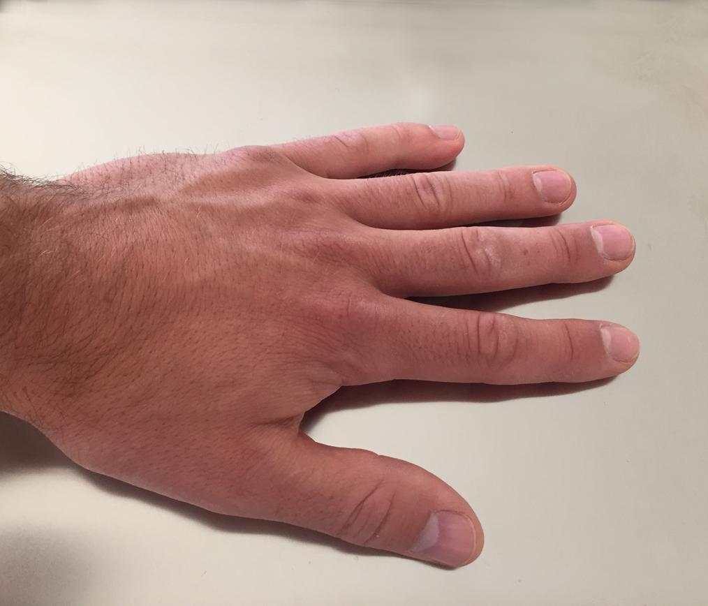 Hand touching proximion's FiBER OPTIC SENSORs - Wistheat