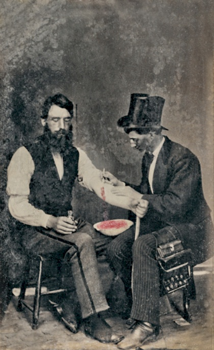 Photo of bloodletting in 1860.  Yes, that's right, 1860.  From the  Burns Archive