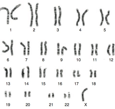 Sex chromosome analyses in Turner's Syndrome. Herethe 22 pairs of autosomes are grouped according to size and the sex chromosomes placed at the end; in this case,  there is only one  X chromosome.  From Saenger and Bondy.  Turner Syndrome  . In Sperling M. (ed.)  Pediatric Endocrinology.  Pittsburgh PA, Elsevier 2014.