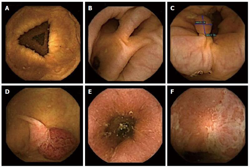 Normal colon and findings visualized at colon capsule endoscopy. A: Normal colon; B: Diverticula; C, D: Polyps; E, F: Ulcerative colitis. From Spada et al. Colon capsule endoscopy: What we know and what we would like to know.   World Journal of  Gastroenterology   2014: 7; 20(45): 16948-16955.