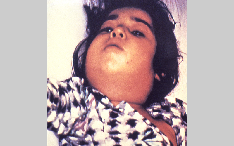 Child infected with diphtheria. Photo from the  CDC .