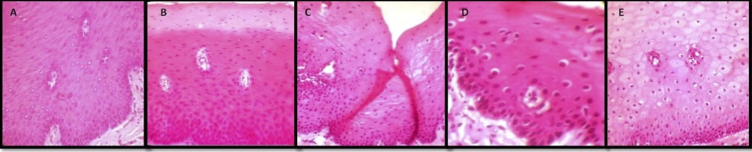 Photomicrograph of the tissues fixed in: A. Formalin, B. Honey, C. Sugar syrup, D. Molasses syrup, E. Distilled water (H & E, 40X). From Patil S, Premalatha B R, Rao R S, Ganavi B S. Revelation in the Field of Tissue Preservation – A Preliminary Study on Natural Formalin Substitutes.   J Int Oral Health   2013; 5(1):31-38.
