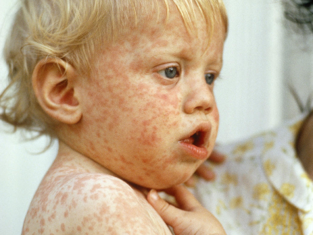 Infant with measles from BBC.jpg