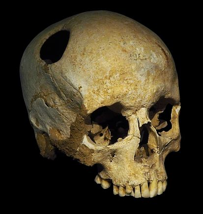 Trephinated skull  of a 50-year old woman found in Corseaux-En Seyton, Switzerland. Growth of the bone around the burr-hole indicate that the the patient survived the procedure. From the collection of the Cantonal Museum of Archeology and History, Lausanne Switzerland.
