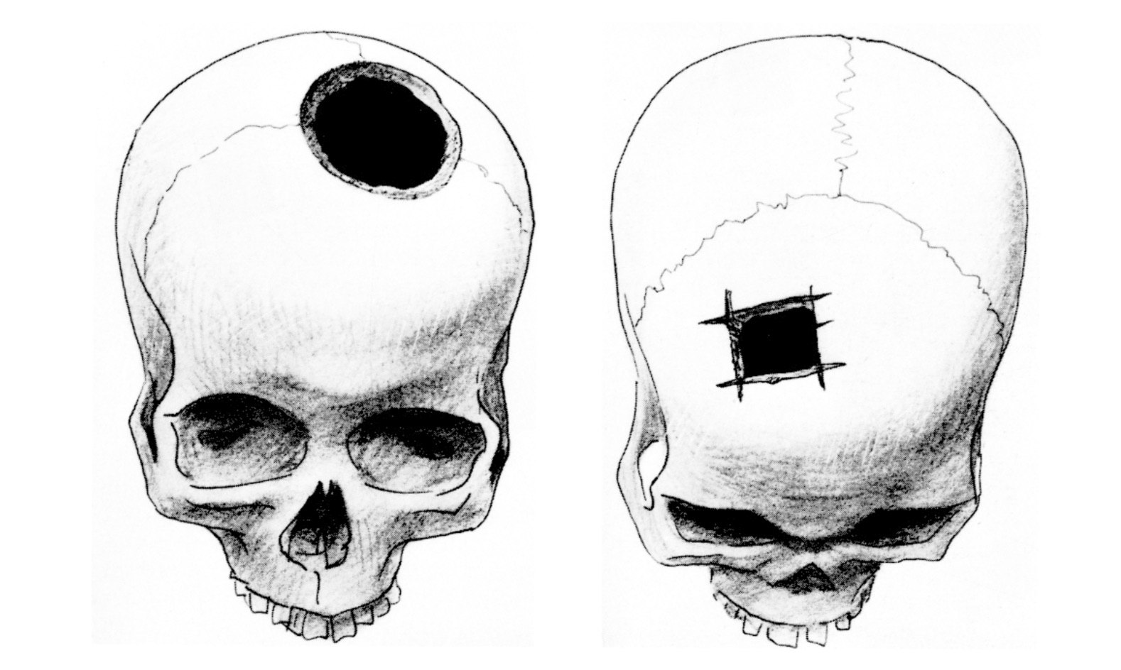 Left: Round trephination found in Jericho. Right: Angular trephination, found in Timna. Angular trephination was associated with a very low rate of survival, indicated by lack of healing of the wound in the skull. It may have been practiced for ritual rather than for therapeutic reasons. From Arensburg B., Hershkovitz I. Cranial deformation and trephination in the Middle East.   Bulletins et Mémoires de la Société d'anthropologie de Paris,   XIV° Série. Tome 5 fascicule 3, 1988. pp. 139-150.