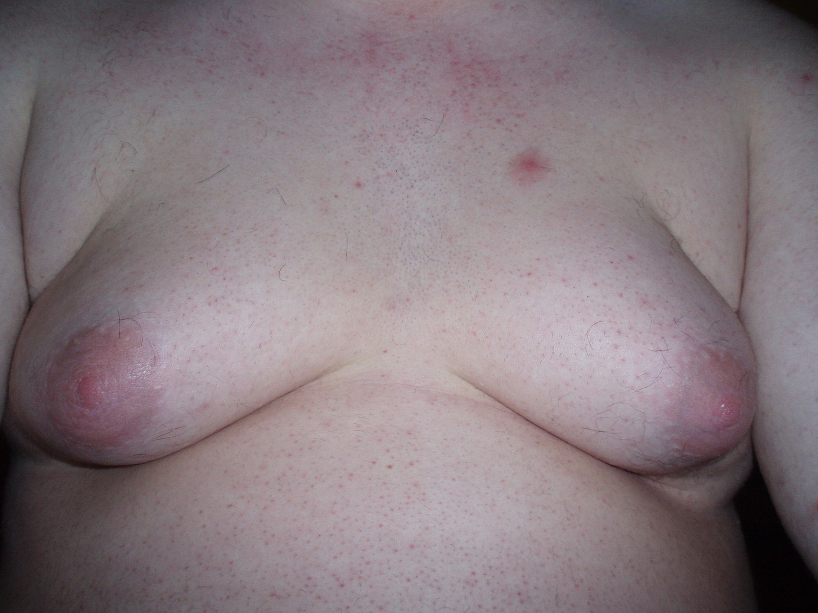 Severe gynecomastia in a young man. From  here .