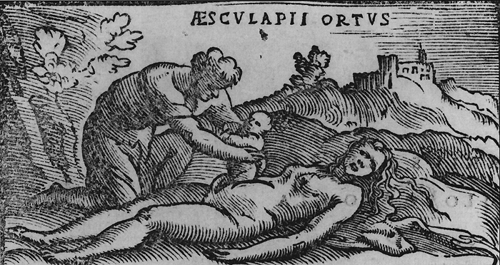 Woodcut of the post mortem cesarean birth of the Greek god Asclepius. From Alessandro Beneditti's  De Re Medica  published in 1549.