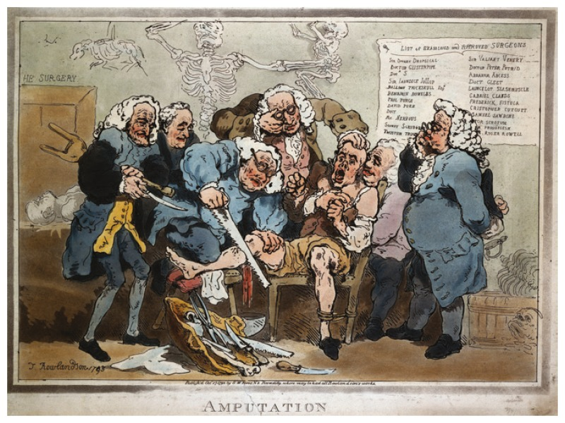 Thomas Rowlandson, 'Amputation' (1793), Wellcome Library, London.