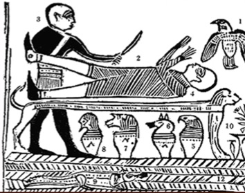 Depiction of amputation in ancient Egypt (Edwin Smith Papyrus, New York Academy of Medicine).