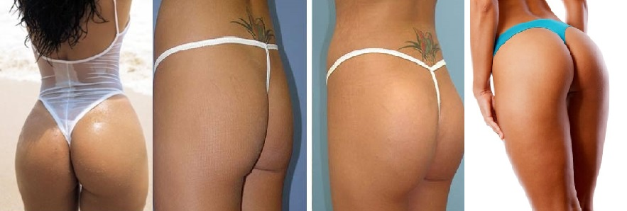 """This buttock lift is done with vacuum therapy machine in which the vacuum buttock cups gradually lift and pump the buttocks while the Radio Frequency waves disrupt the fat cell walls, which causes the fat cells to """"leak"""" their contents into the fluid spaces of your body giving you a fuller, more rounded and lifted butt. Results vary per person and some people may see results after only one session while it can take at least 3-4 sessions to begin to see results. It is recommended to have at least 10 sessions total for more permanent results.  1 SESSION $65, 10 SESSIONS $550"""