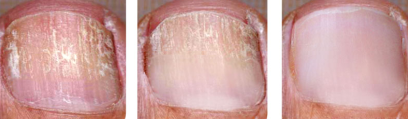 toenail 8 weeks after.png